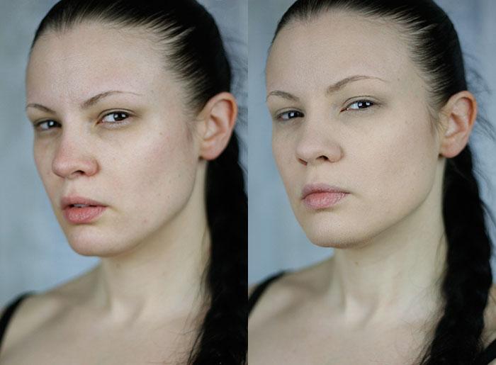 Better_Skin